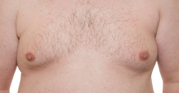 Gynecomastia Causes and Surgery