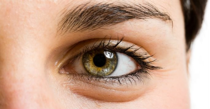 What Does Eyelid Surgery Treat?