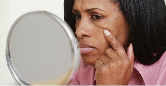 Sagging skin