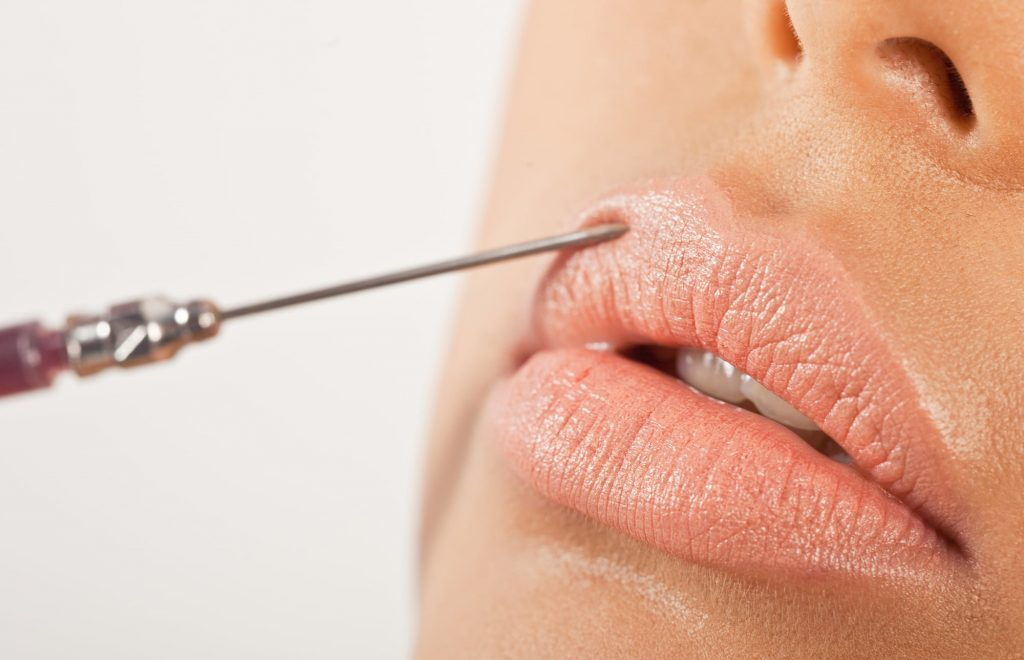 Common Reasons for Lip Enhancements